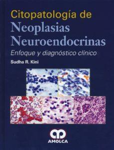 citopatologia de neoplasias neuroendocrinas: enfoque y diagnostico clinico-9789588871738