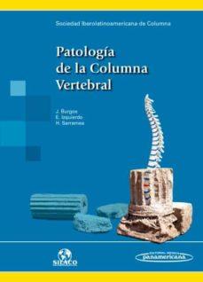 patología de la columna vertebral.-9788491100348